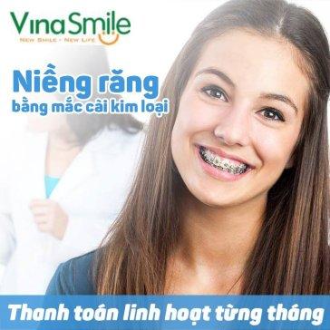 Niềng Răng Thay Đối Cuộc Đời - Thanh Toán Linh Hoạt Từng Tháng Tại NK Vinasmile