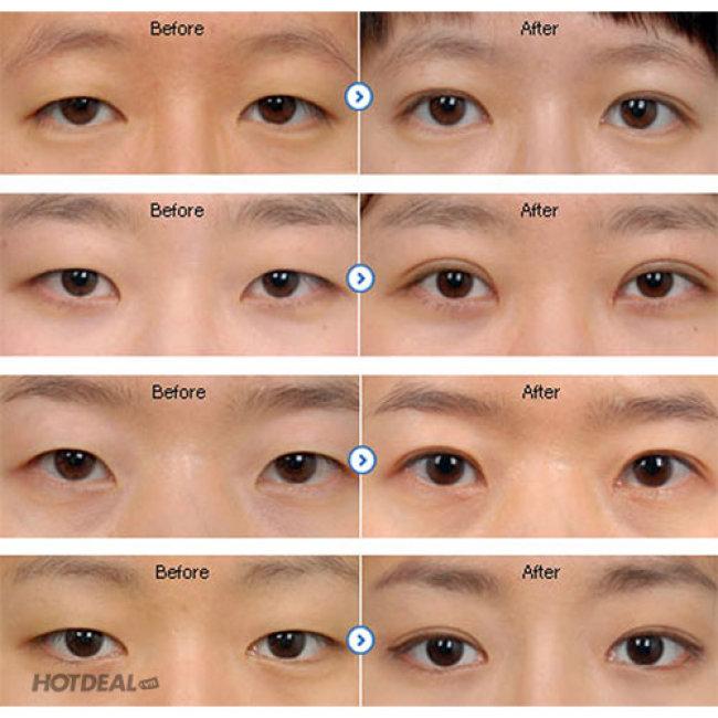 Bấm Mí Đa Điểm Giúp Mắt To Tròn Tự Nhiên Tại Bệnh Viện STO...