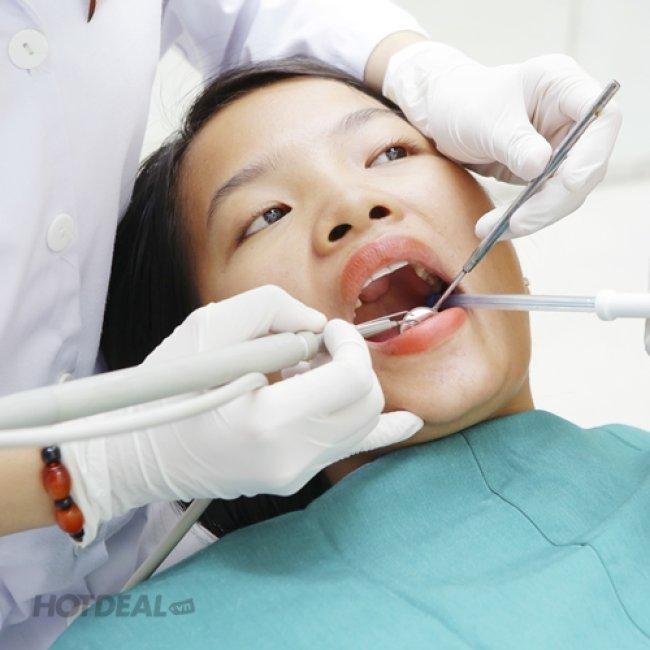 Dịch Vụ Răng Sứ Titan Tại Nha Khoa Sài Gòn