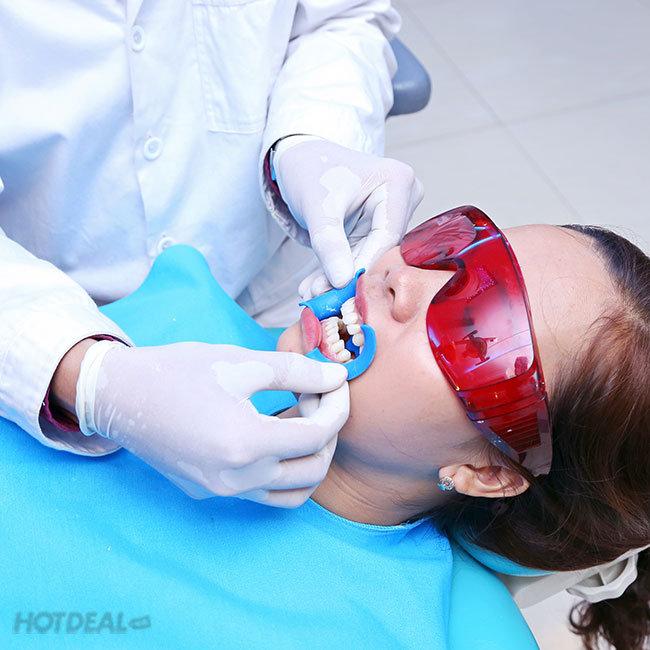 Răng Toàn Sứ Zirconia 100% Của Đức (Gồm Răng Tạm) – Bảo Hành...