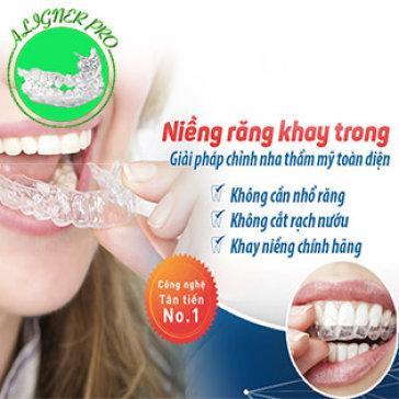Gói Thẩm Mỹ Toàn Diện Niềng Răng Không Mắc Cài Aligner Pro Tiêu Chuẩn Châu Âu Cho 2 Hàm – Tặng Gói Tẩy Trắng Răng 1Tr8 - Nha Khoa Nụ Cười Việt