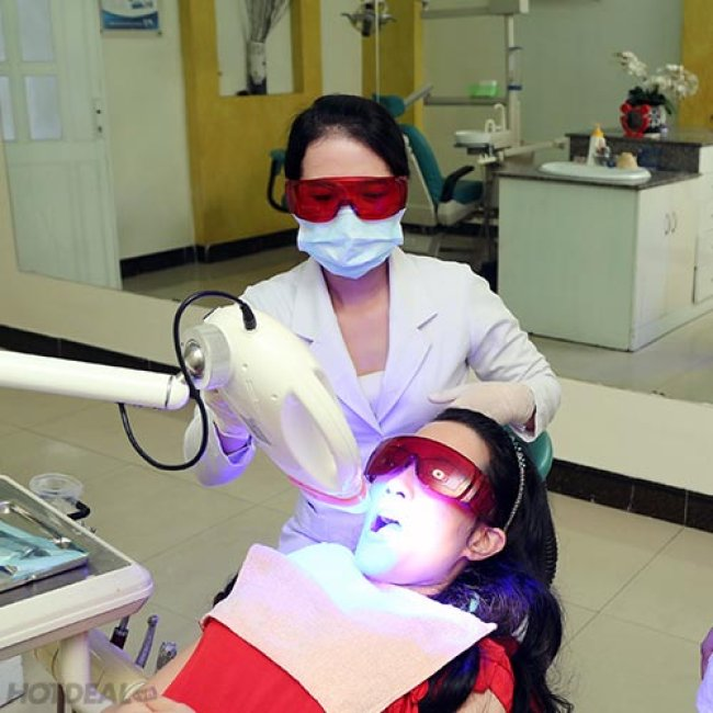 Tẩy Trắng Răng Bằng Công Nghệ Plasma Tại Nha Khoa Thịnh Phát