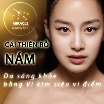 Vi Kim Siêu Vi Điểm Trị Sẹo Rỗ Bằng Tế Bào Gốc Hàn Quốc -...
