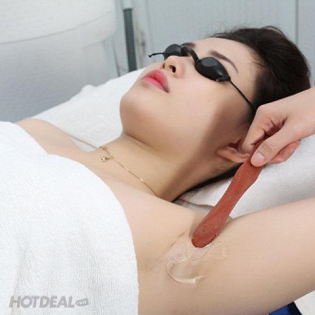 Triệt Lông Không Giới Hạn Số Lần/ 01 Năm Tại Thẩm Mỹ Viện...