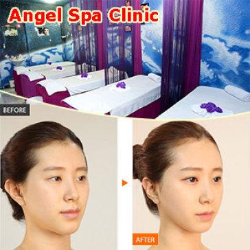 TMV Angel - Bấm Mí Mắt Hàn Quốc/ Ấn Độ Không Phẫu Thuật