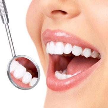 Răng Sứ Titan Italy - Bảo Hành 05 Năm Tại Nha Khoa Cercon