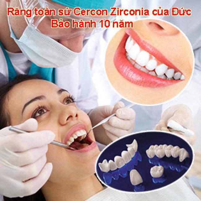 Răng toàn sứ Cercon Zirconia - Bảo Hành 10 Năm - Nha Khoa Đại Sứ