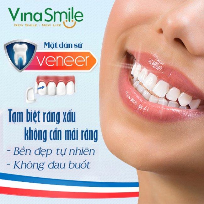 VinaSmile - Bọc Sứ Veneer Emax 3D KHông Cần Mài Răng Thật, Hot Nhất...