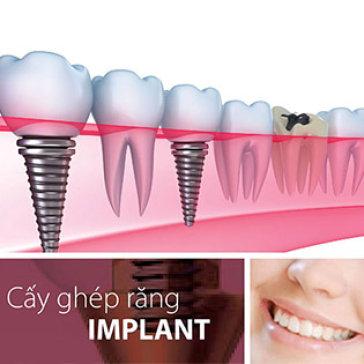 Cấy- Ghép Implant Đức, Mỹ, Pháp - Phương Pháp Trồng Răng Hiệu...