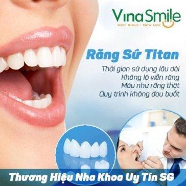 Bọc Răng Sứ Titan (BH 5 Năm) Tặng Cạo Vôi Răng & Đánh Bóng, Camera Nội Soi Tại Nha Khoa Số 1 Sài Gòn – Vinasmile