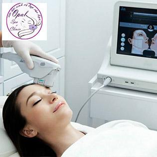 Miễn Tip - Opal Clinic Spa 5* - Nâng Cơ Ultherapy + 2 Lần Sử Dụng Công Nghệ Căng Bóng Da Hàn Quốc (Cam Kết Hiệu Quả Ngay Lần Đầu Tiên)