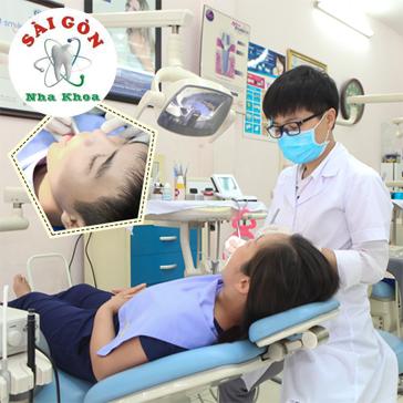 Lấy Cao Răng + Đánh Bóng Răng Và Tư Vấn Vệ Sinh Răng Miệng Tại Nha Khoa Sài Gòn