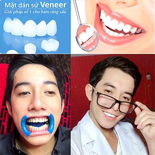 Ưu Đãi Giá Sốc: Full 2 Hàm Phủ Răng Sứ Nano White – Dán Sứ Veneer Công Nghệ Đức Tại Mịn Beauty & Dental