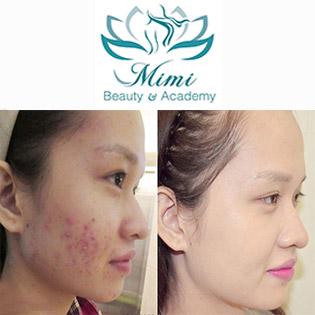 90 Phút Điều Trị Mụn Dứt Điểm Bằng Công Nghệ Ánh Sáng Omega Light Tại Mimi Beauty Spa