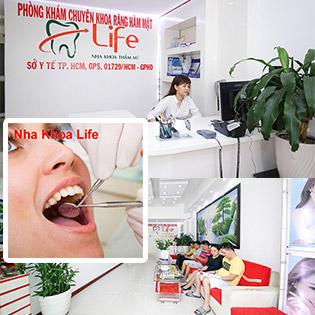 Nha Khoa Life - Tẩy Trắng Răng Công Nghệ Laser Whitening Số 1 Tại Mỹ  Không Đau, Không Gây Ê Buốt - Đã Bao Gồm Vệ Sinh Đánh Bóng Răng