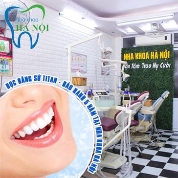 Dịch Vụ Hot Bọc Răng Sứ Titan - Bảo Hành 5 Năm Tại Nha Khoa Hà Nội