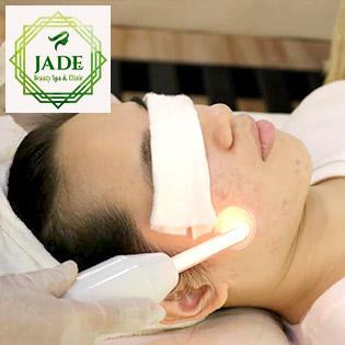 Miễn Tip - 100 Phút Điều Trị Mụn, Thâm + Lấy Sạch Nhân Mụn Tại Jade Beauty Spa & Clinic Gò Vấp