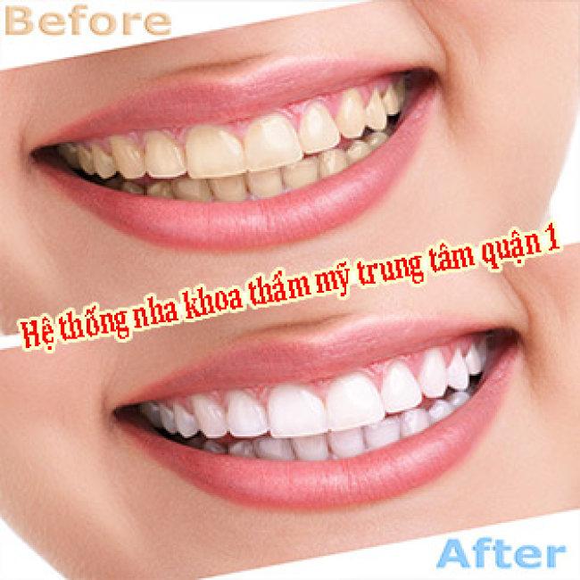 Tẩy Trắng Răng Laser Whitening Số 1 Tại Mỹ Hiệu Quả Tức Thì, Không Đau - Bao Gồm Vệ Sinh, Đánh Bóng Răng Tại Tại Hệ Thống Nha Khoa Thẩm Mỹ Trung Tâm Quận 1