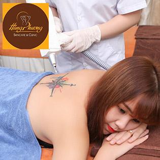 Trọn Gói 5 Lần Xóa Xăm Không Để Lại Sẹo Độc Quyền Chỉ Có Tại Hùng Phương Skincare & Clinic