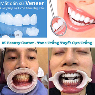 Full 2 Hàm Phủ Răng Sứ Diamond Nano White – Tone Trắng Tuyết Công Nghệ Đức Tại M Beauty & Dental