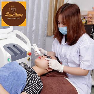 Combo 5 Lần Điều Trị Nám - Tàn Nhang Bằng Công Nghệ Laser Yag2 - 2018 Korea Độc Quyền Chỉ Có Tại Hùng Phương Skincare & Clinic