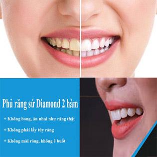 Cấy Sứ Diamond 2 Hàm Không Mài Nhỏ Răng, Chỉnh Hình Răng Sứt Mẻ Tại Kay Beauty - Miễn Phí Vệ Sinh Răng + Tặng 2 Lần Vệ Sinh Răng Sau Khi Cấy Sứ