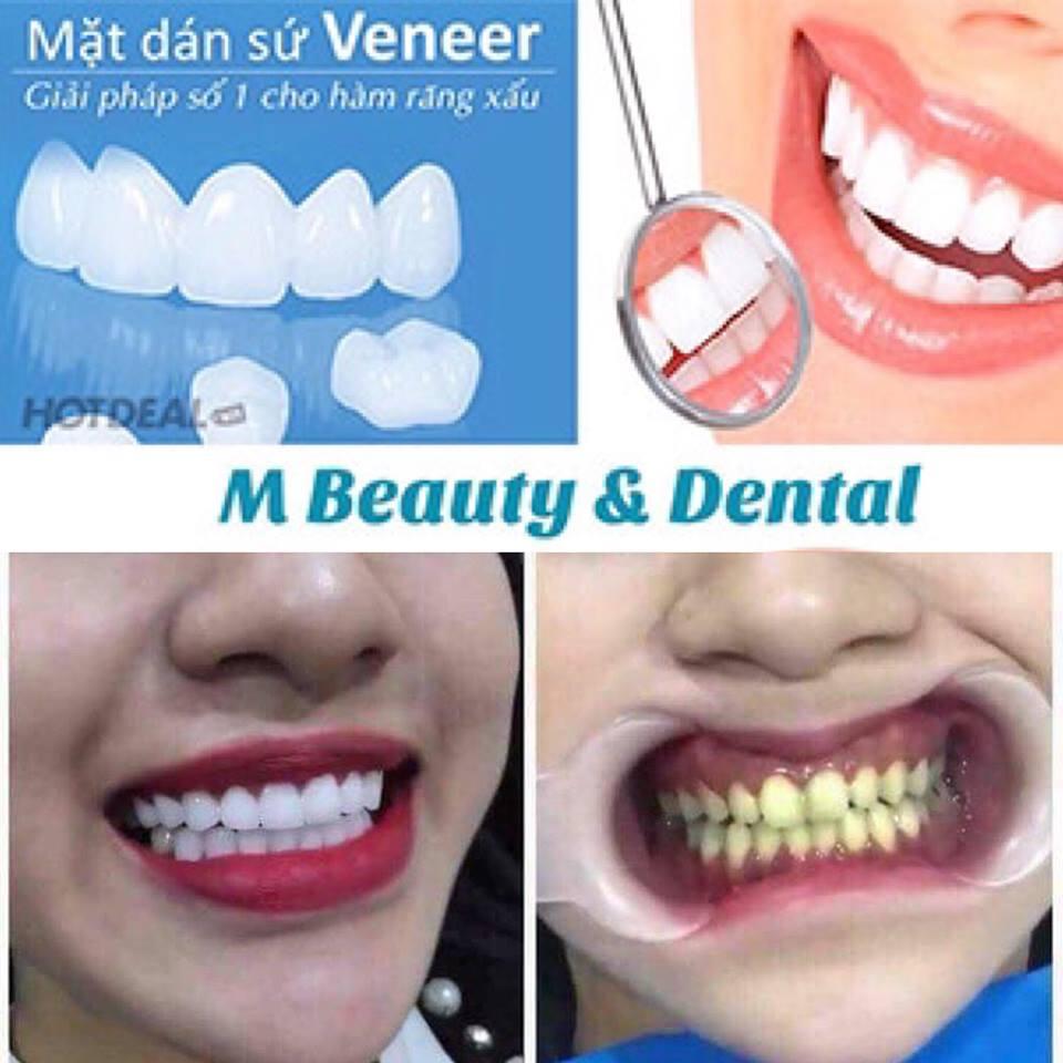 Ưu Đãi Giá Sốc: Full 2 Hàm Cấy Phủ Răng Sứ Nano White – Sứ Veneer Công Nghệ Đức Tại M Beauty & Dental