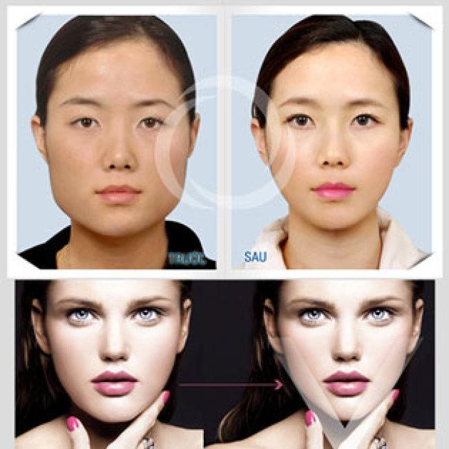 Miễn Tip - Nâng Cơ, Xóa Nhăn, Trẻ Hóa Da, Tạo Hình Vline - Cam Kết Hiệu Quả 100% - Grand Skin Care - Thương Hiệu Uy Tín Sài Gòn
