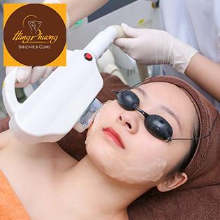 Combo 5 Lần Nâng Cơ – Thon Gọn Khuôn Mặt Công Nghệ Elight Crystal Korea Tại Hùng Phương Skincare & Clinic