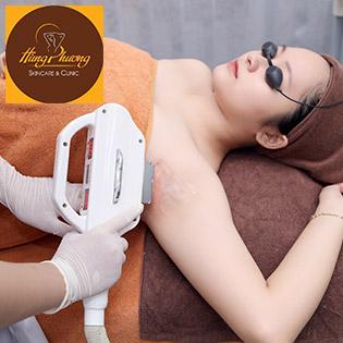 Gói Triệt Lông Vĩnh Viễn (10 Lần) Công Nghệ Korea BH 2 Năm Chỉ Có Tại Hùng Phương Skincare & Clinic