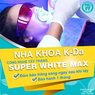 Hệ Thống Nha Khoa Quốc Tế K-Da - Tẩy Trắng Răng Super White Max Không Đau, Không Ê Buốt (Đã Bao Gồm Cạo Vôi, Đánh Bóng) - Đảm Bảo Trắng Sáng & BH 01 Tháng