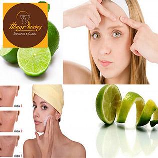 Combo 5 Lần Điều Trị Mụn Tận Gốc Liệu Trình 9 Bước Độc Quyền Chỉ Có Tại Hùng Phương Skincare & Clinic