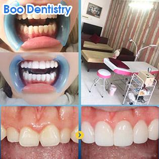 Trọn Gói Phủ Sứ Màng Răng Veneer (2 Hàm) Không Mài Răng, Bảo Tồn 100% Răng Gốc + Tặng 2 Lần Vệ Sinh Đánh Bóng Răng Tại Boo Dentistry