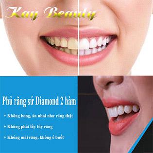Cấy Sứ Diamond 2 Hàm Không Mài Nhỏ Răng, Chỉnh Hình Răng Sứt Mẻ Tại Kay Beauty (Miễn Phí Vệ Sinh Răng)
