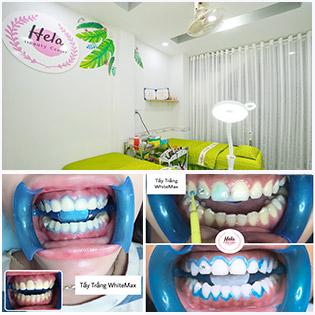 Tẩy Trắng Răng Laser White Max Không Đau, Không Ê Buốt (Đã Bao Gồm Cạo Vôi, Đánh Bóng) - Đảm Bảo Trắng Sáng & BH 01 Tháng tại Hela Beauty & Dental