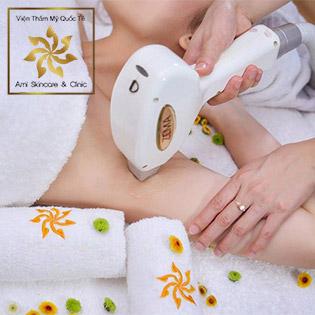 Trọn Gói 10 Lần Triệt Lông Không Đau, Siêu Nhanh Công Nghệ Hàn Quốc Diode Laser - Viện Thẩm Mỹ Quốc Tế Ami Skincare & Clinic
