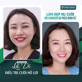 Cắt Nướu Chữa Cười Hở Lợi Trả Lại Nụ Cười Tự Nhiên Tại Nha Khoa Sao Việt