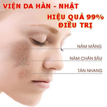 Điều Trị Nám Tận Gốc, Lâu Năm Công Nghệ Cấy Collagen, Tiêm Vi Điểm, Chạy C Tại HT Viện Da Hàn Nhật - Uy Tín Trên 10 Năm