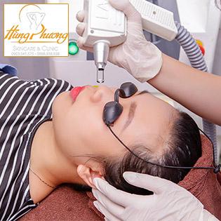 Combo 5 Lần Điều Trị Nám - Tàn Nhang Bằng Công Nghệ Laser Yag3 - 2019 USA Độc Quyền Chỉ Có Tại Hùng Phương Skincare & Clinic