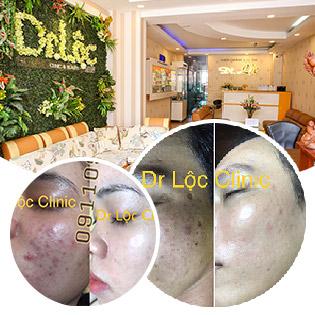 Trọn Gói 02 Buổi Điều Trị Mụn Tặng Kèm Tinh Chất Đặc Trị Mụn Hàn Quốc/ Crystal Skin Da Căng Bóng Trắng Hồng Baby - Viện Da Dr Lộc