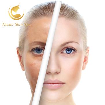 Trọn Gói 6 Lần Thải Độc, Khử Chì, Phun Oxyjet Trẻ Hóa Da - Doctor Skin Spa
