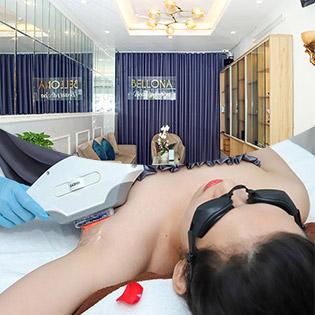 Triệt Lông Vĩnh Viễn: Sáng Da + Giảm Mùi Cơ Thể + Không Đau + An Toàn Công Nghệ Laser IPL Tại Bellona Beauty & Spa (Spa Làm Đẹp Uy Tín Quận 10)